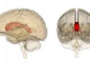 La relación entre el autismo y la agenesia del cuerpo calloso