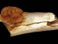 Restos humanos de hace 1,7 millones de años con cáncer cuestionan la paleodieta